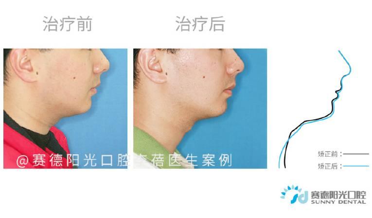 下颌后缩案例 | 通过矫正打开咬合 改善深覆合