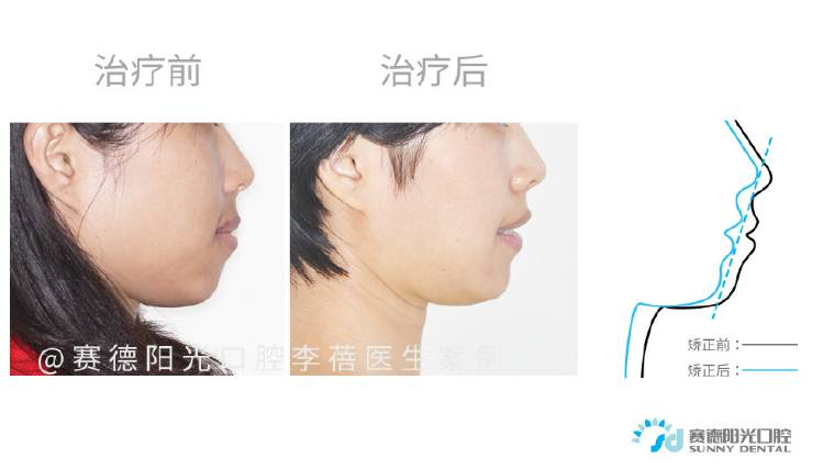 嘴突案例 | 以整齐健康的好牙迎接人生新的阶段